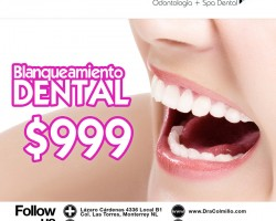 Blanqueamiento dental $999